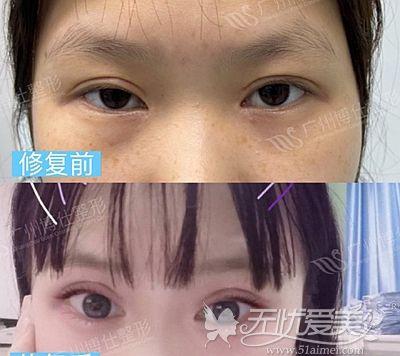 广州张建军修复双眼皮怎么样