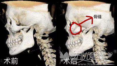 颧骨内推后骨缝的位置