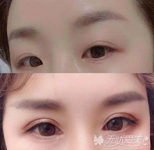 开眼角恢复十天过程图证明10个开眼角9个留疤说法不准确