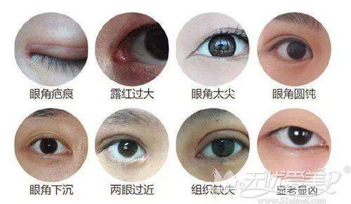 内眼角修复会不会越修越难看得看医生修复过程和缝合技术