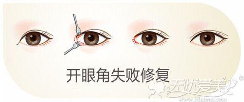 开眼角失败修复过程