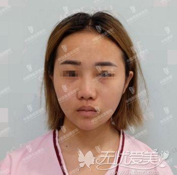 在南京做鼻综合前