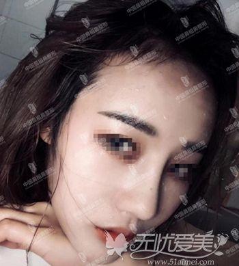 在南京做肋骨鼻综合后2个月
