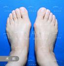 我终于做了大脚骨手术,找马桂文做的技术靠谱价格也不贵术前