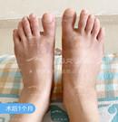我终于做了大脚骨手术,找马桂文做的技术靠谱价格也不贵术后