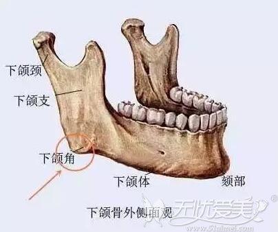 下颌角留角不留角的区别