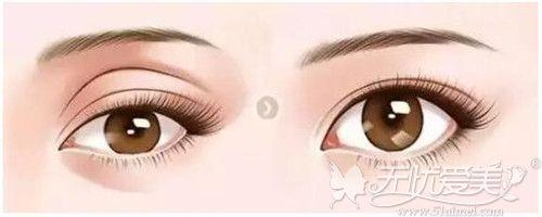 眼窝凹陷怎么改善