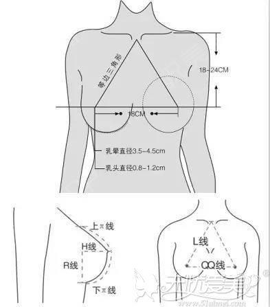 隆胸的标准
