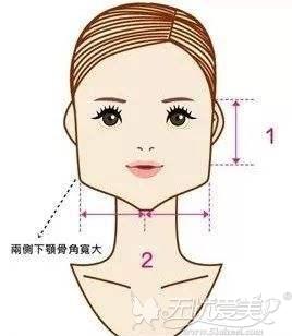 方脸需要根据自己面部情况进行手术