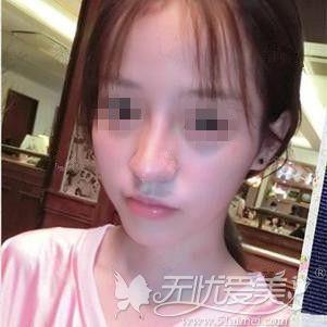 广州曙光肋骨鼻修复案例