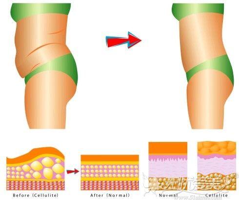 腰腹吸脂能瘦多少
