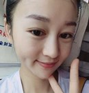 在北京东方和谐做全脸脂肪填充5到10天照片公布 脸也不肿了