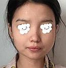 从一位女生下颌角截骨案例对比中你会发现脸没小,不存在的