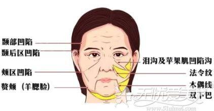 面部衰老怎么办?