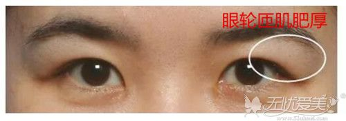 眼轮匝肌肥厚也会导致肿眼泡