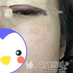在包头叶子做双眼皮手术当天