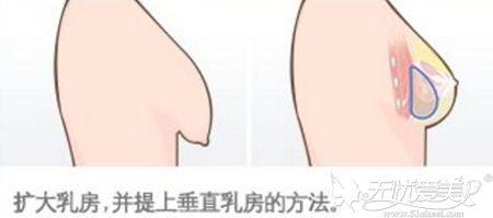 胸部松弛下垂要先提升乳房在进行假体填充