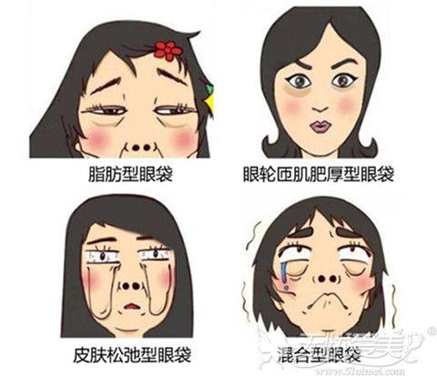 眼袋的形成类型不同