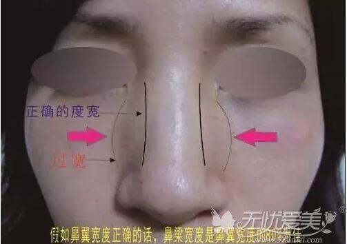 做完鼻骨内推24天没见鼻子变更宽,但完全恢复还需四十多天