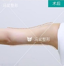 北京美女找冯斌做手臂吸脂后感慨道:没觉的很贵倒觉得很值