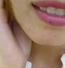 我真后悔去年没找上海虹桥疤痕科单兴柱解决面部凹陷疤痕
