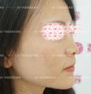 玻尿酸隆鼻解决不了矮山根鼻,广州荔医邹顺禄采取了鼻综合