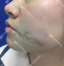 奔着深圳鹏程疤痕科口碑去的,果然淡化了脸上的凹陷老疤