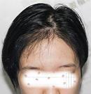 在武汉上学顺便做了个1000单位的微针发际线种植,颜值提升了术后