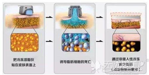 酷塑冷冻溶脂原理