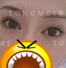 刘风卓双眼皮修复案例中的主人公提到:就是冲着口碑来的