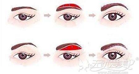 普通提眉手术的原理
