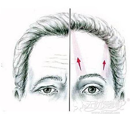 做提眉手术后可以达到的效果