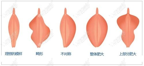 50岁女性下面小阴唇肥大做手术切除会不会有什么风险?