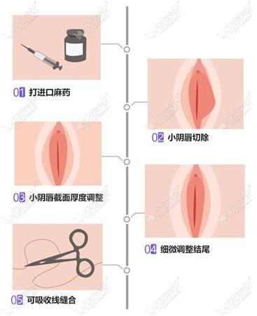 小阴唇肥大手术切除过程