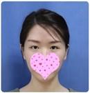 做的埋线双眼皮不到2年变成三角眼,赶紧找杨淑云做了修复术前