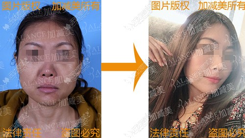 v美减龄术前术后效果图片