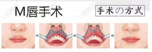 M唇手术过程
