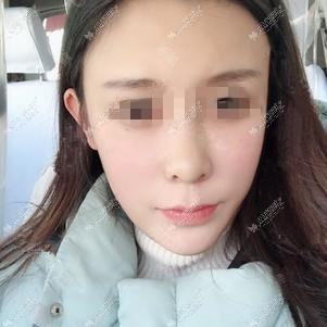 在北京美莱做2次超皮秒去斑后