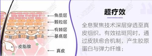 在北京美莱祛斑后会反弹吗