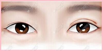 双眼皮长度、宽度不一致