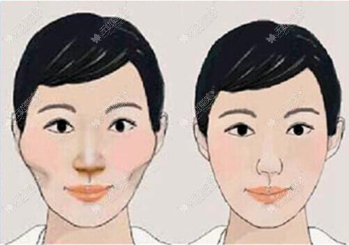 脸型较宽的人可以选择颧骨内推和下颌角截骨手术
