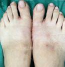 微孔大脚骨手术亲身经历:过程很漫长,但可以穿高跟鞋很开心