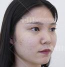 做单侧耳软骨鼻综合才花了1万多就摆脱掉塌鼻梁,这效果真香