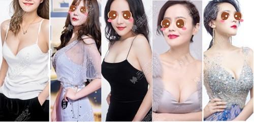 长沙雅美历届隆胸模特