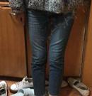 北京张清峰医生做的GRL大腿吸脂,恢复期没传说中的那么难受