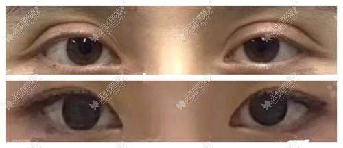 双眼皮眼尾过长是否能修复
