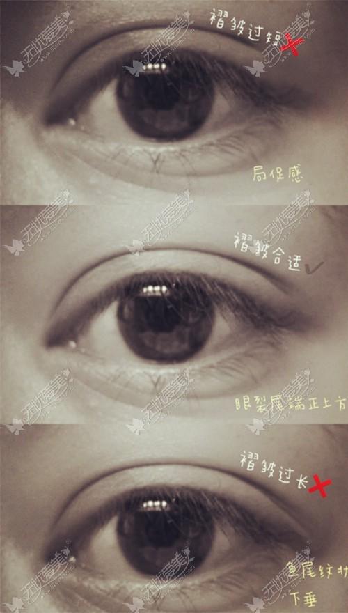双眼皮眼尾的长度标准
