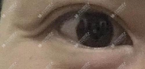 做全切双眼皮后眼尾过长的缺点