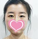 眼内双找杭州张霞飞割的贝塞尔曲线全切双眼皮恢复半年后