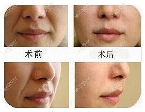 脂肪填充鼻唇沟的效果图